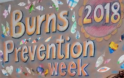 Burns Awareness and Prevention Week May 2018